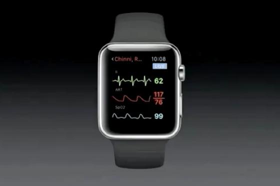 Apple Watch показує рівень серцебиття вагітної та її дитини